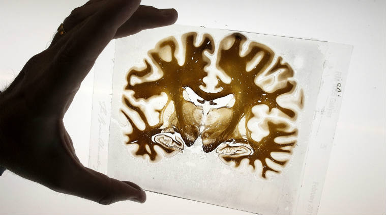Researchers Create An Atlas Of Developing Human Brain